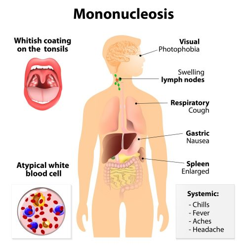 White spots on tonsils: Mononucleosis