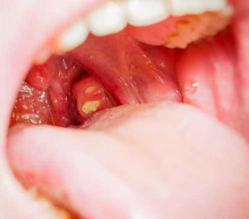 White spots on tonsils: Tonsillitis