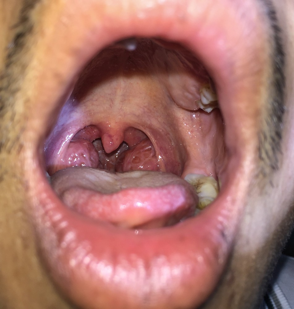White spots on tonsils | causes, symptoms, treatment, pictures