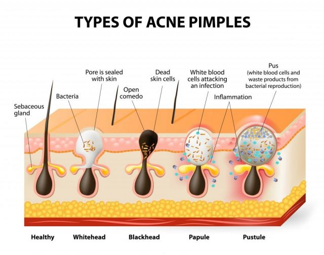 ypes of acne pimples. Healthy skin, Whiteheads and Blackheads, Papules and Pustules