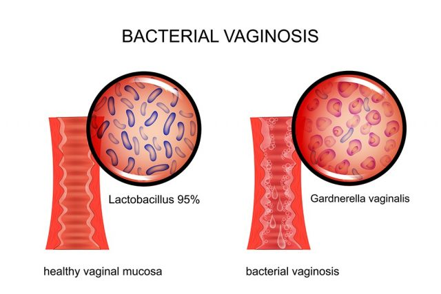vagina affected by bacterial vaginosis