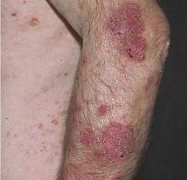 Arm Lesions Pictures, Images & Photos | Photobucket