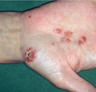 Chlamydia Reiter's hand lesions