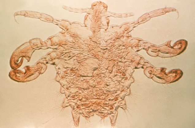 Phthirus pubis, or more commonly known as the pubic, or crab louse