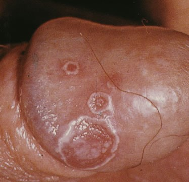 Chlamydia symptom photo (picture)