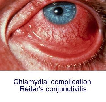 Chlamydia symptom photo (picture)