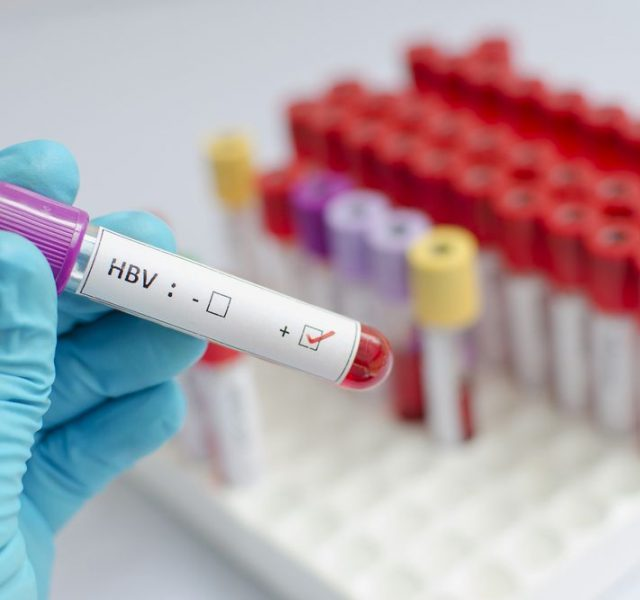 Blood sample with hepatitis B virus (HBV) positive