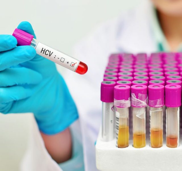 Blood sample positive with hepatitis C virus (HCV)