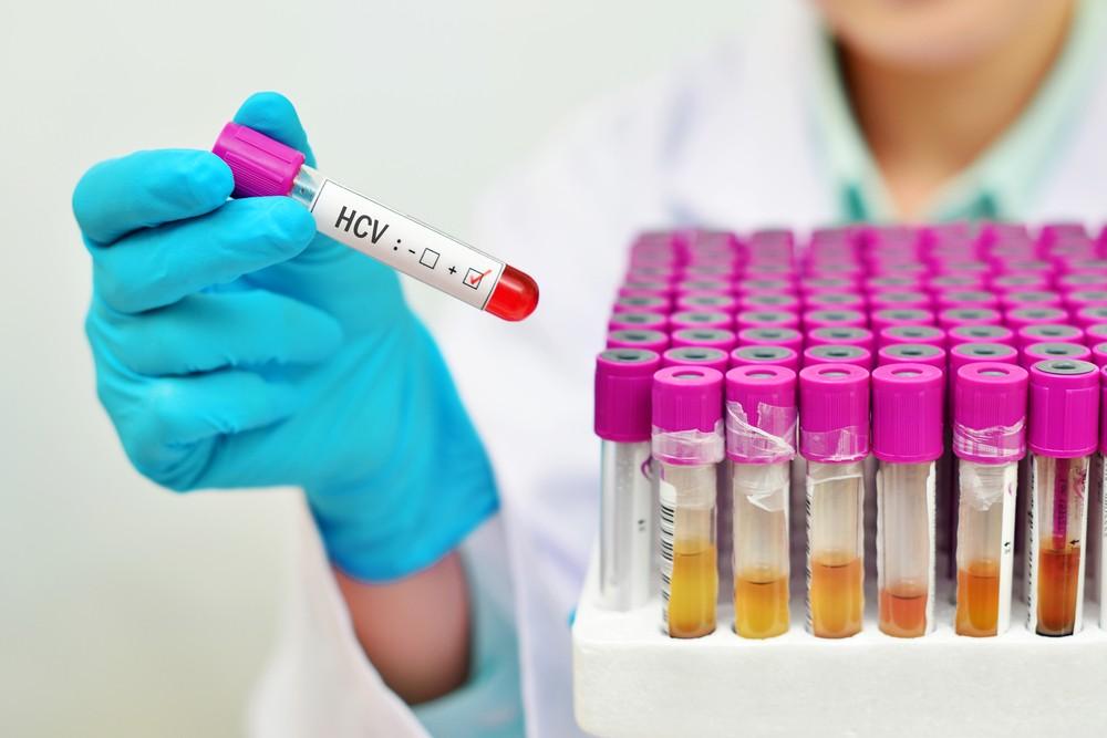 сдача крови на венерологические заболевания какие