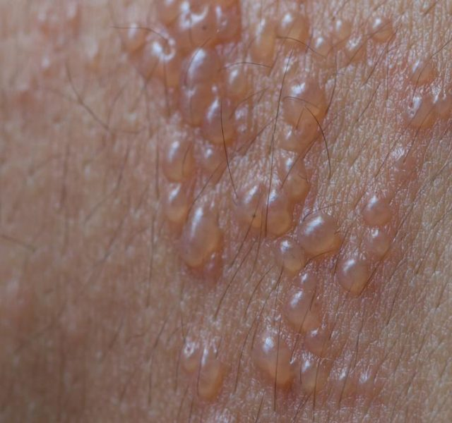 Skin infected Herpes zoster virus