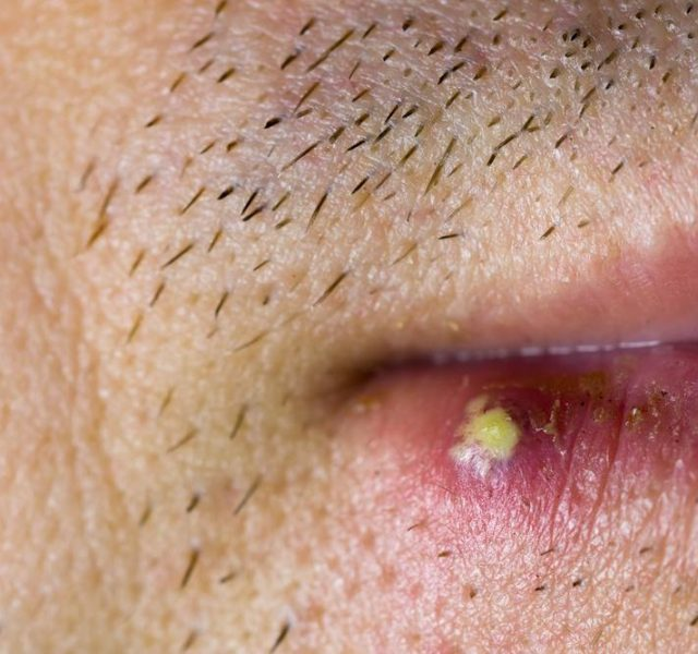 Virus herpes infected on male lip, closeup