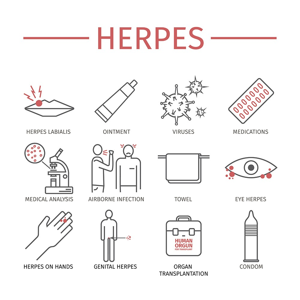 Herpes: symptoms, treatment