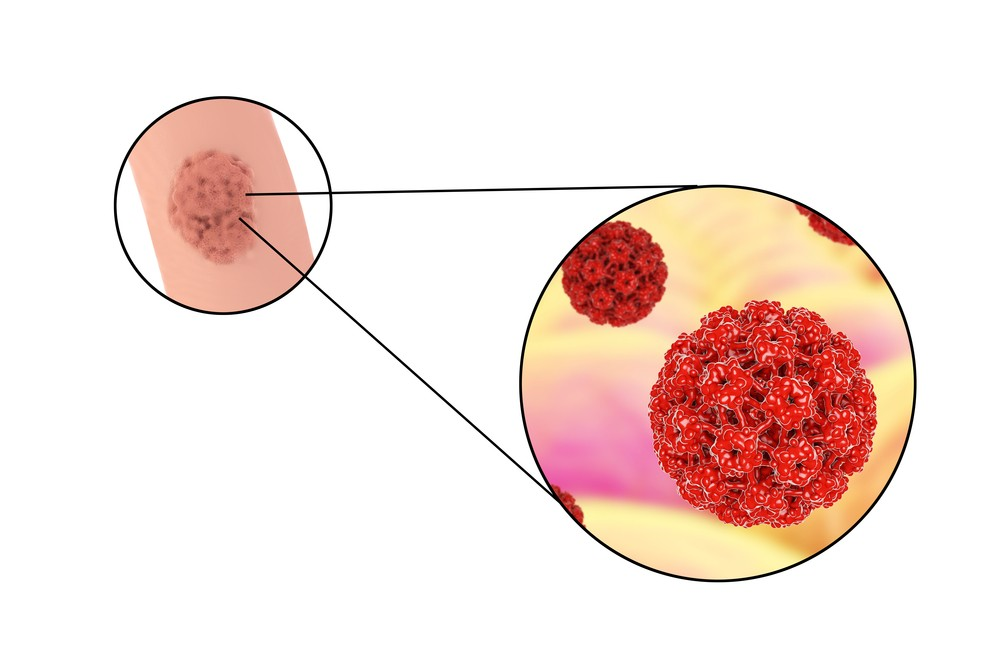 HPV Symptoms, Treatment, Vaccine, HPV in Men and Women