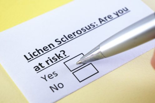 Lichen sclerosus: Vaginal Itching, Burning and Irritation