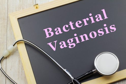 Bacterial Vaginosis: Vaginal Itching, Burning and Irritation