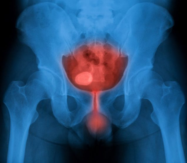 X-ray image of bladder, Showing urinary bladder and urethra infection, male