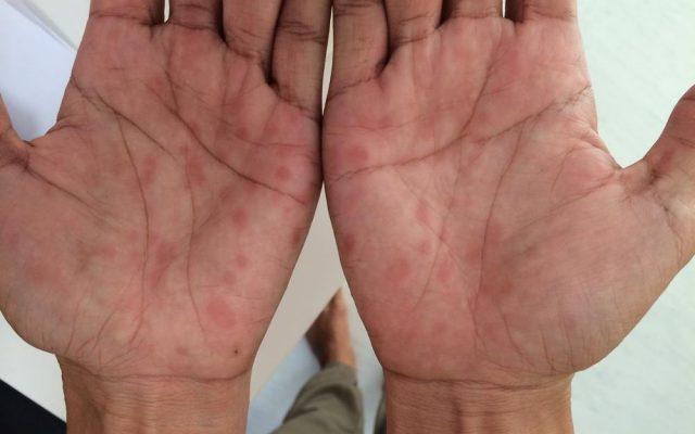 Secondary Syphilis, palms involvement