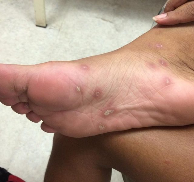 Secondary Syphilis in lady who had history unsafe sex, soles involvement