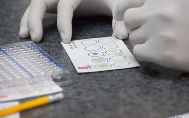 RPR, VDRL ,Syphilis test (select point focus,dark tone)