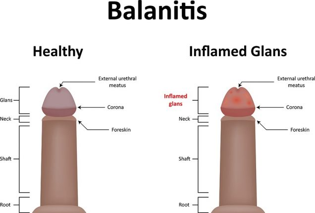 Penis Yeast Infection Pics