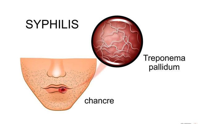 Illustration of syphilis. symptoms and causative agent