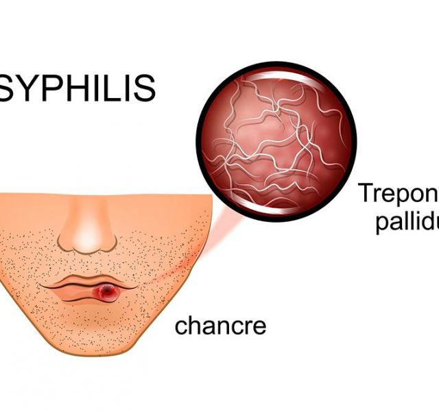 Signs and symptoms of syphilis in adults