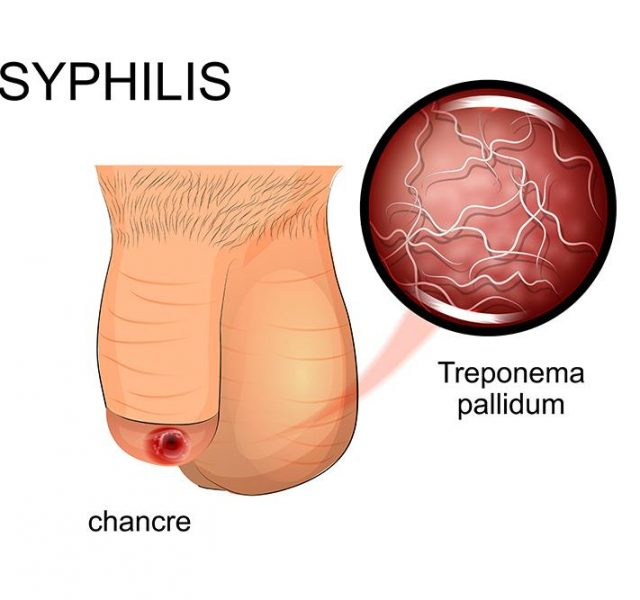 Illustration of symptoms of syphilis - affected penis