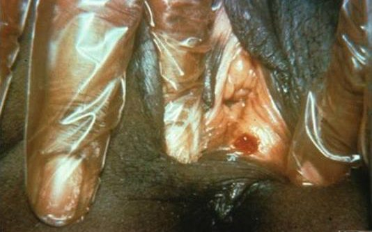 Primary stage syphilis sore