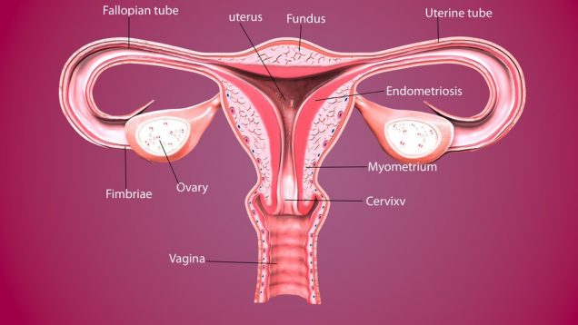 Complications of Chlamydia - Female reproductive system.3D render