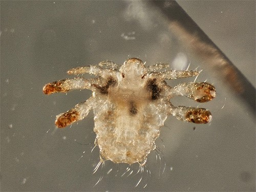 crabs STD (pubic lice) 10