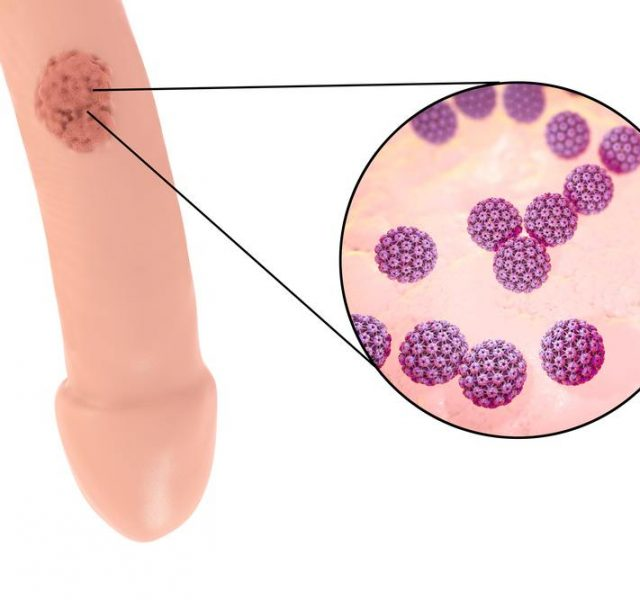 Common locations of genital warts, Human papillomavirus HPV lesions in men, and close-up view of HPV
