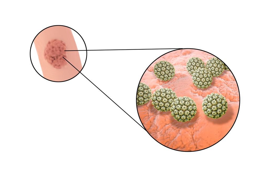Hpv Genital Warts Symptoms Treatment Testing Std Hpv