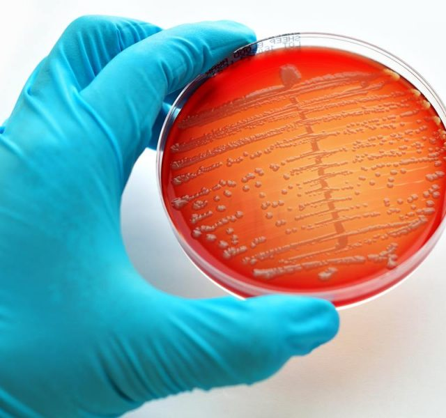 Gonorrhea: Colonies of bacteria in blood agar culture medium plate