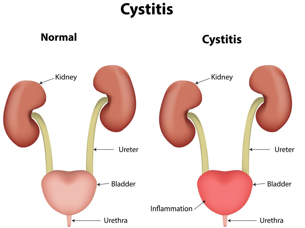 Painful urination dysuria causes treatment what to do cystitis urinary tract infection ccuart Image collections