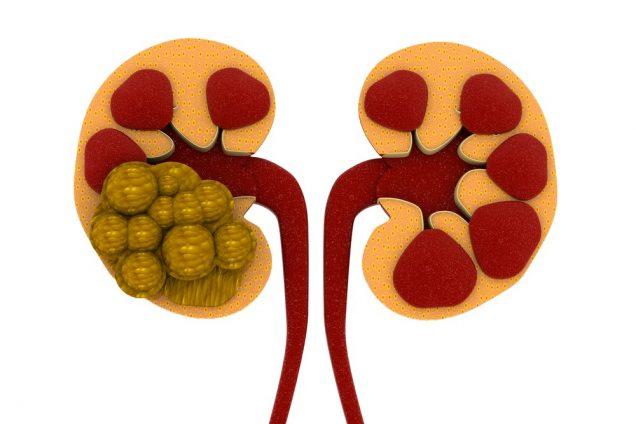 Painful Urination (Dysuria): Kidney stones