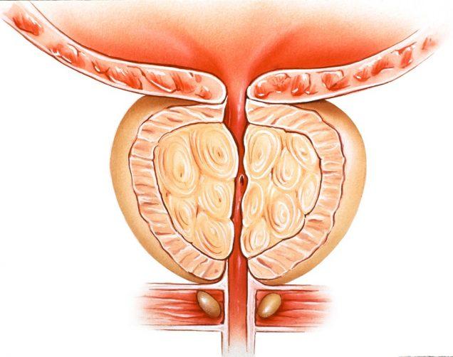 Painful Urination (Dysuria): Prostatitis