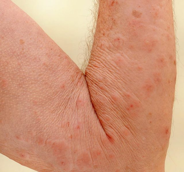 Close up of an elderly man's inner arm severely infested with Scapies mites (Sarcoptes scabiei)