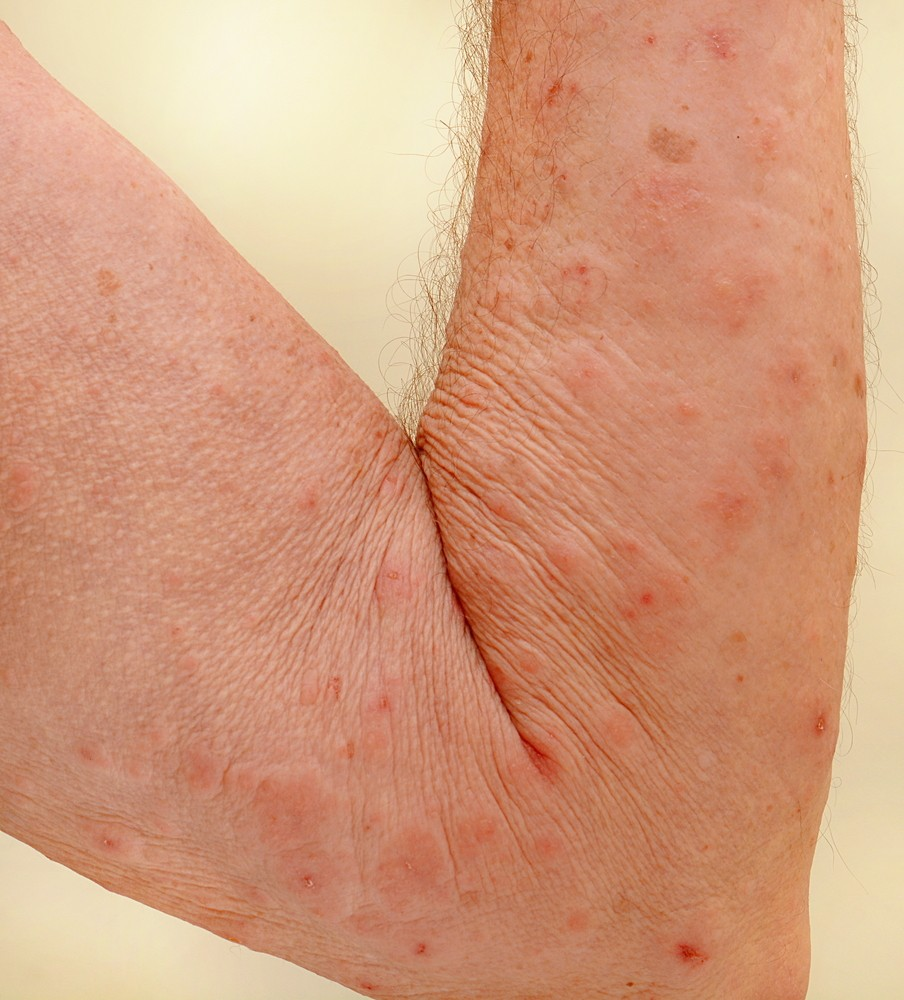 Sexually transmitted disease rash pictures