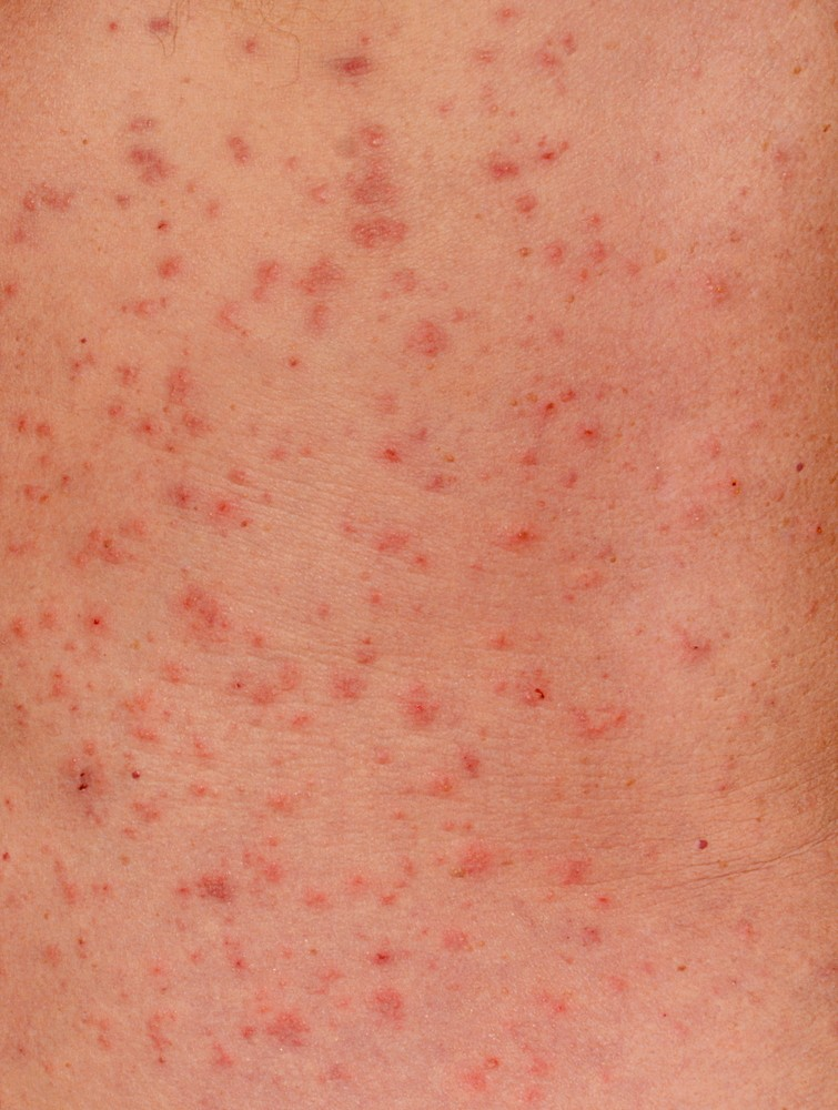Scabies | Causes, Symptoms, Treatment, Pictures & Images