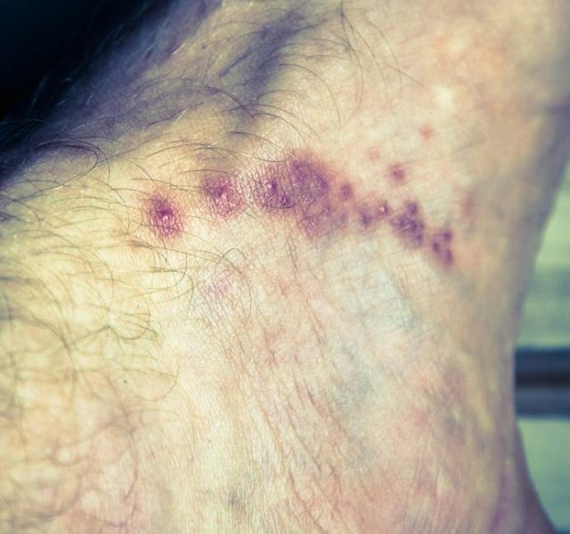 Skin diseases - scabies