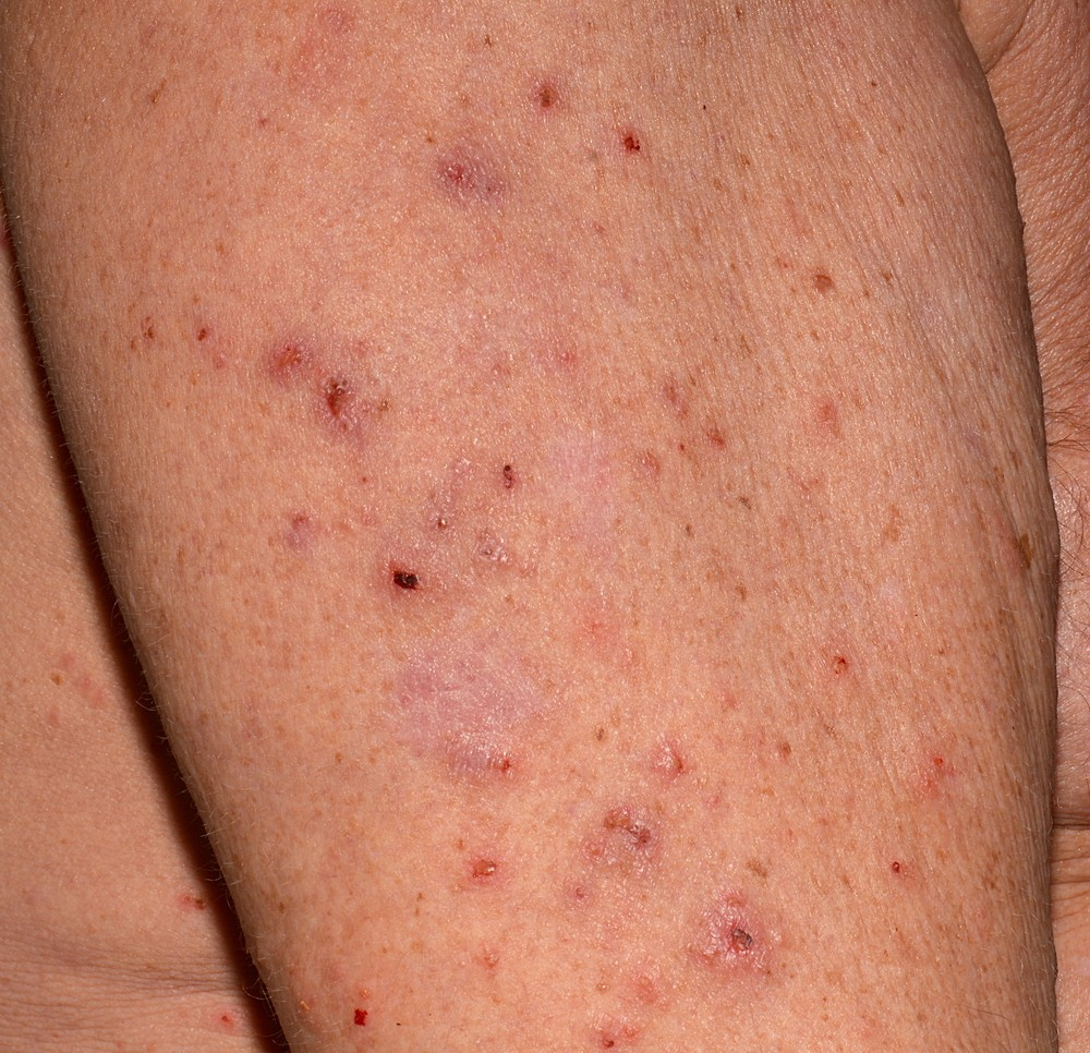 Scabies - how it looks (photo). Symptoms and treatment of scabies 88