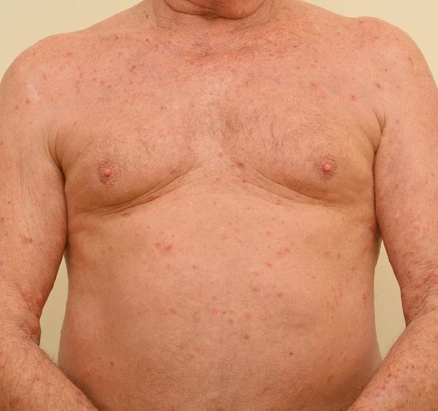 Close up of an elderly man's chest , stomach and arms severely infested with Scapies mites (Sarcoptes scabiei)