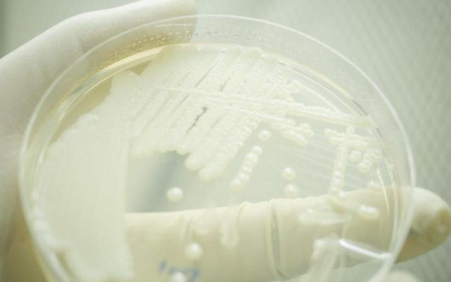 Close up of Yeast cultivation on agar medium plate in microbiology laboratory