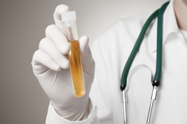 Doctor holding a bottle of dark urine sample